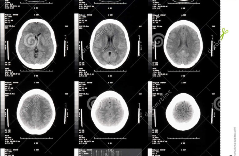 Strokes and mental state changes hint at how COVID-19 harms the brain