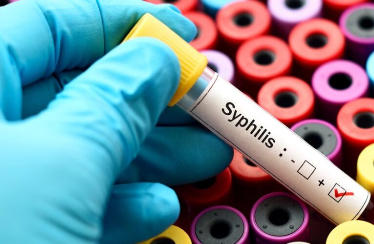 Syphilis Cases in California Drive a Record-Setting Year for STDs Nationwide